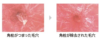ファンケル アクネケア 薬用 洗顔クリームで洗浄した後の毛穴の比較画像